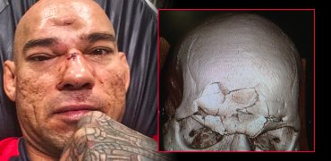 GoFundMe Campaign To Help Evangelista 'Cyborg' Santos With Fractured Skull Hospital Bills