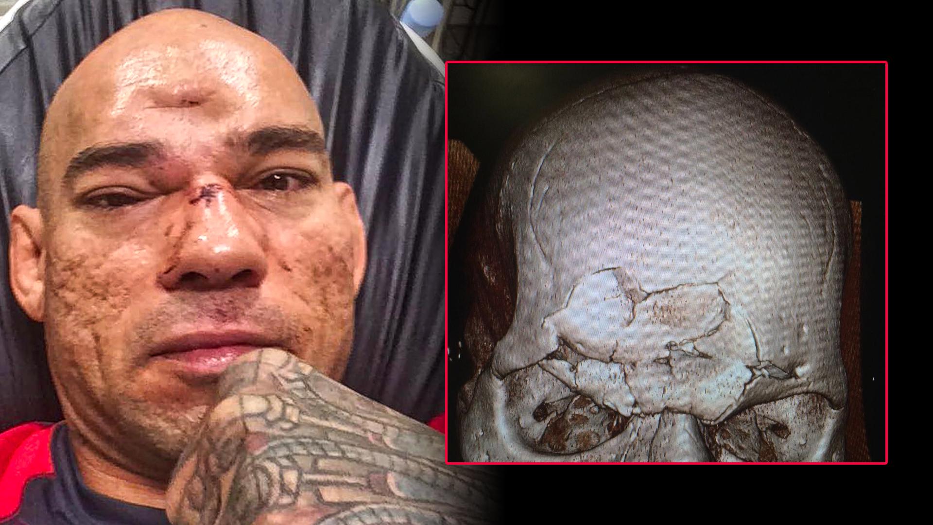 2016-07-16-cyborg-santos-skull.jpg